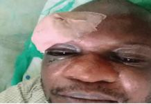 Irate residents stabbed IBEDC staff bottle in the eye for distributing utility bill