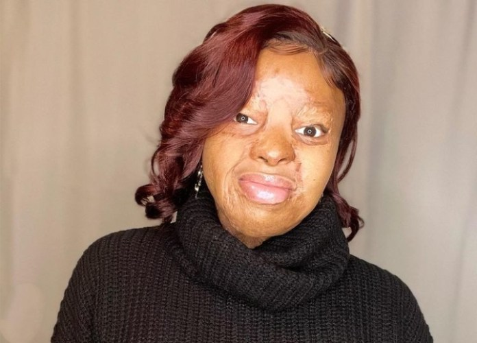 Plane Crash Survivor Kechi Okwuchi Celebrates Another Victory After Accident