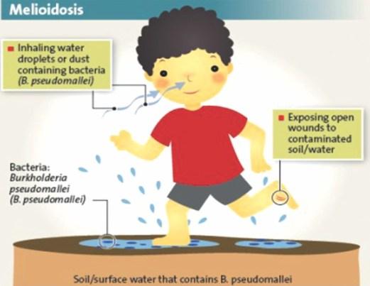 meliodosis1