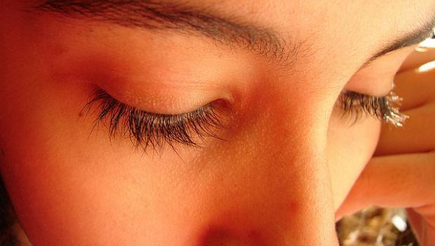 驚!睫毛越掉越多?小心你的眼瞼發炎了