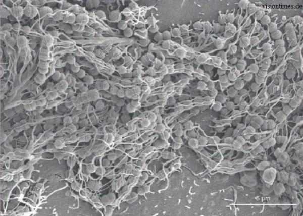 Как зубной налет превращается в кариес (фото) - Научно ...