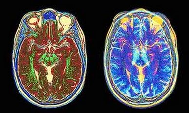 Ascension Center Enlightenment Brain Research