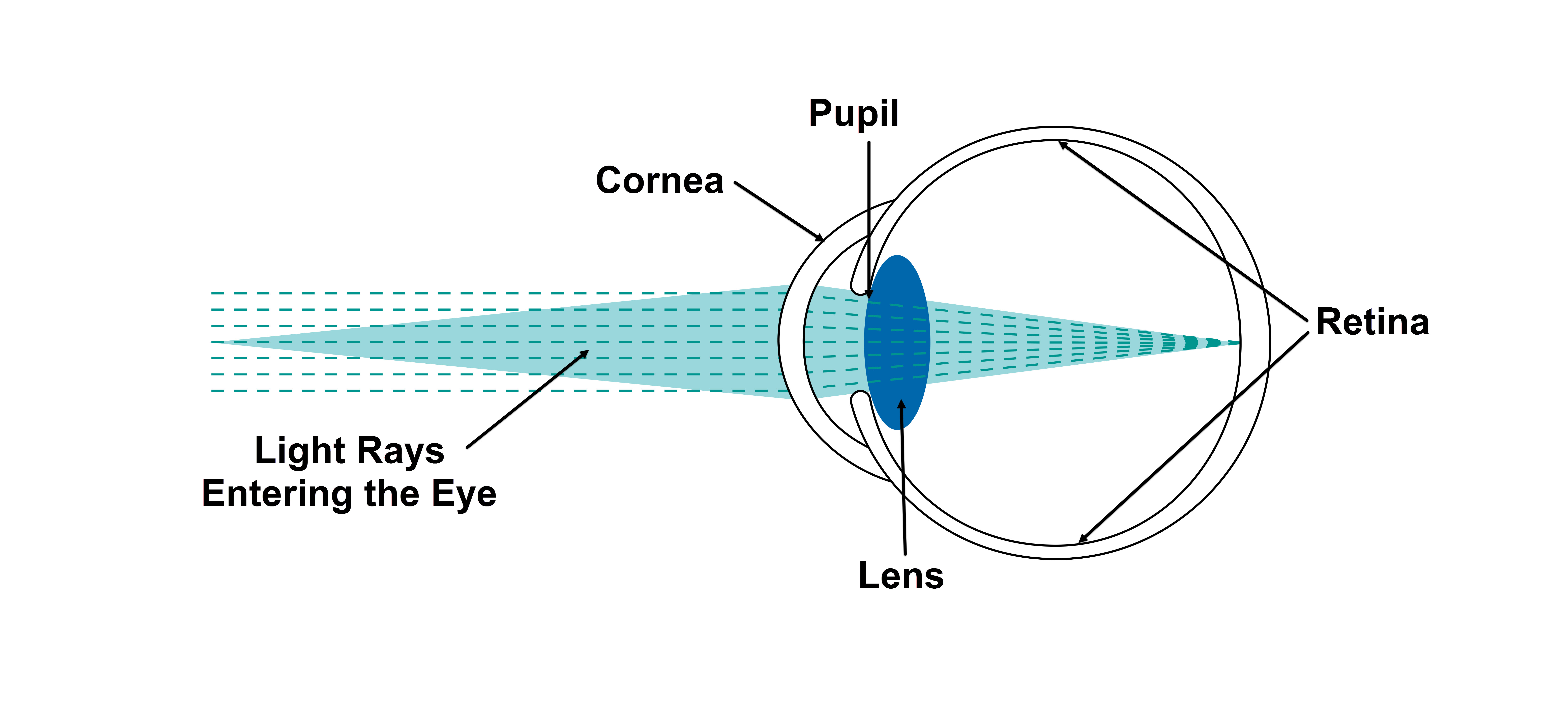Understanding Your Vision And Cataracts