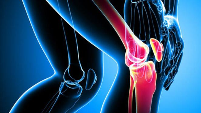 What is glass bone disease #3