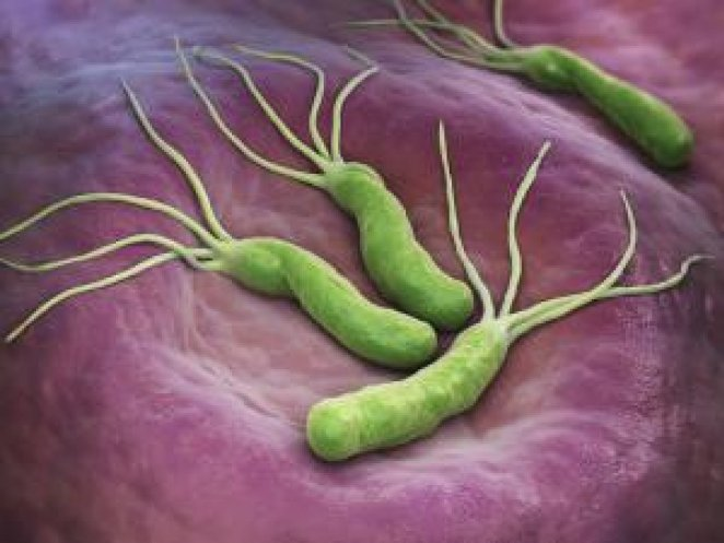 What is Helicobacter pylori #3