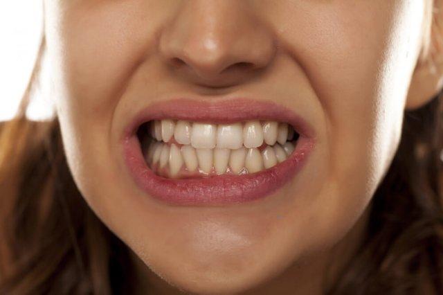 dis 3266 - Uykuda diş gıcırdatma sebepleri nelerdir? Diş gıcırdatma nasıl önlenir?