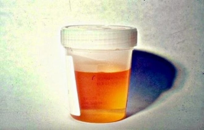 7 signs of kidney failure #3