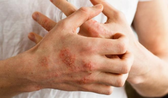 Allergy symptoms to watch out for after coronavirus vaccine #1