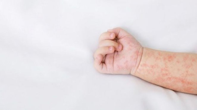 What is a rash #1
