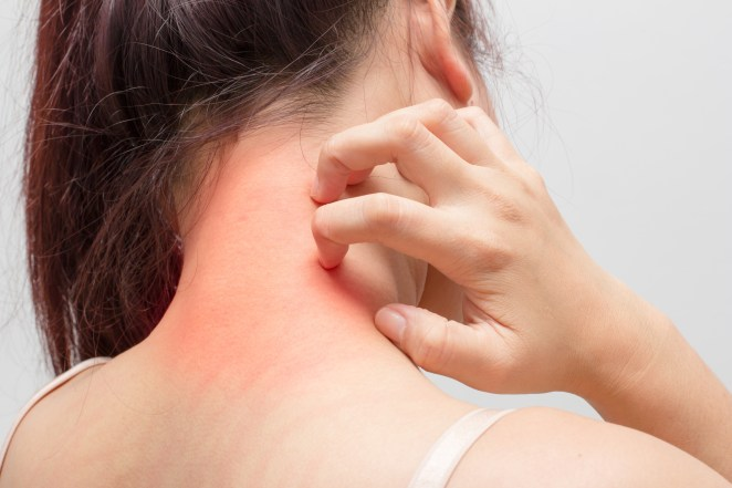 Scabies can be transmitted within 10 minutes #1