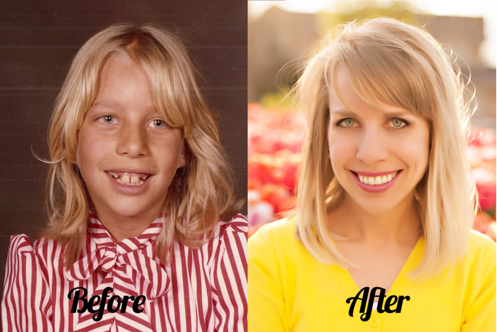 Do you carry emotional scars from how you looked as a child or teenager? Learn the secret that helped me heal my insecurities and taught me how to look and feel truly beautiful, from the inside out, every day!