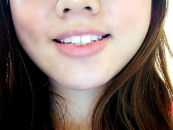 Review: LED Teeth Whitening at Lush Aesthetics