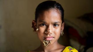 Sahana Khatun pictured in Dhaka with warts on her face (31 January 2017)