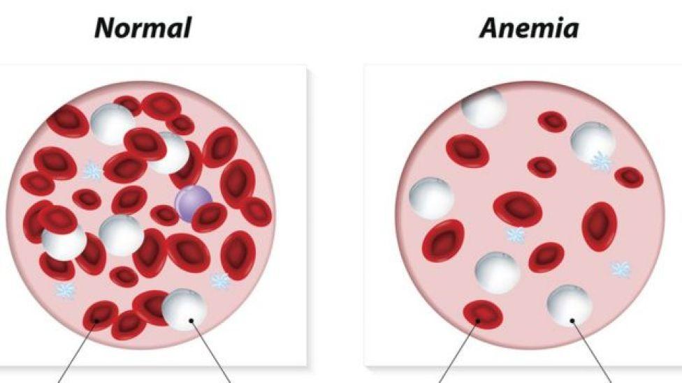 Ilustração mostra a diferença entre amostras de sangue saudável e anêmico