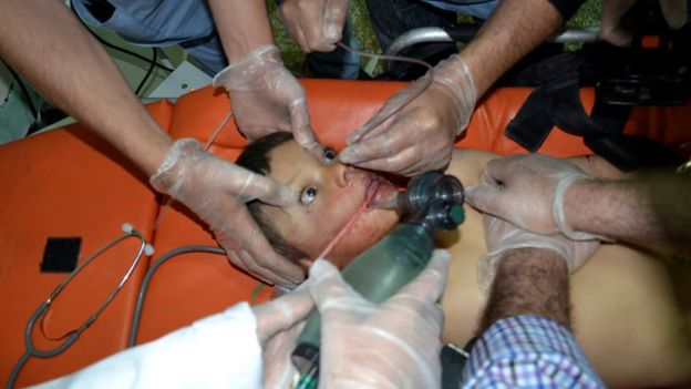 A boy who activists say was affected by a gas attack receives treatment at Bab al-Hawa hospital
