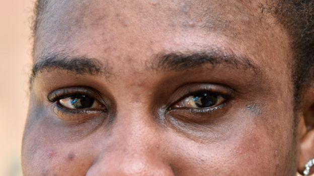 Las manchas de pigmento sobre los hombros de la foto