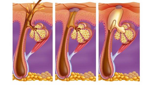 Ilustración acné