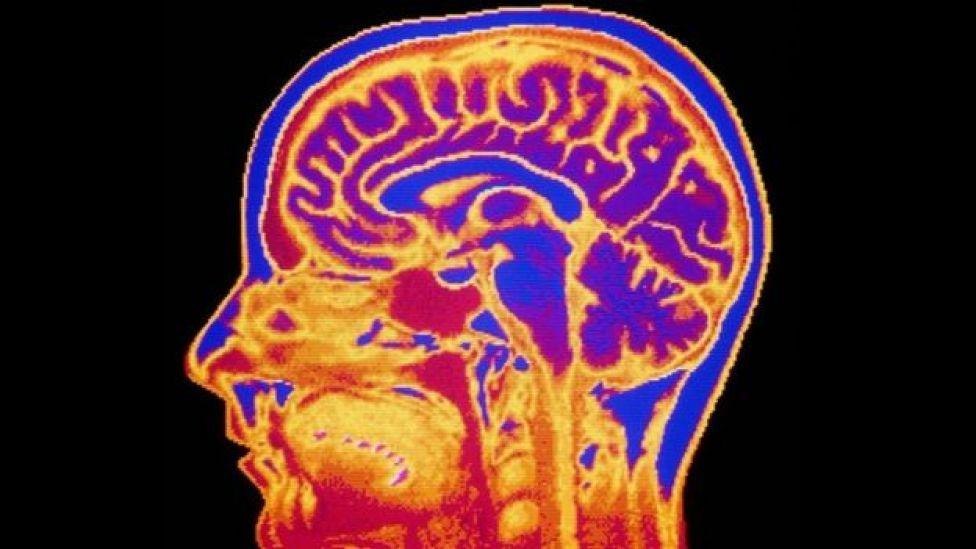 Una imagen de escáner de una cabeza