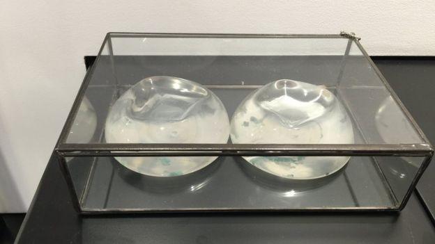 Implantes de silicona