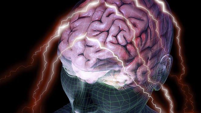 brain scan - conceptual image