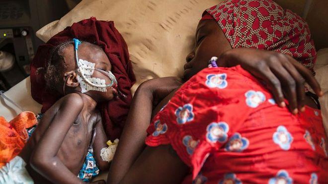 Criança e sua mãe em uma clínica de nutrição na Nigéria