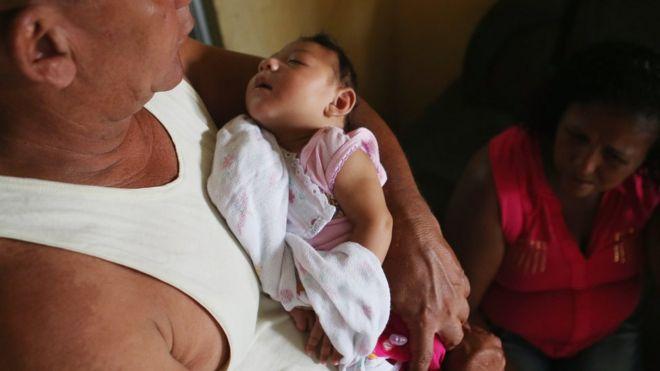 Three-month-old Alice Vitoria Gomes Bezerra, who has microcephaly, held by her father Joao Batista Bezerra in Recife, Brazil. 27 Jan 2016