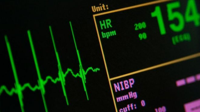 Heart rate on monitor