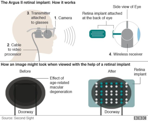 Infographic showing how bionic eye works and what it can see