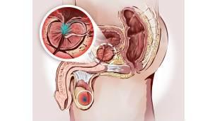 para que es la prostata en los hombres