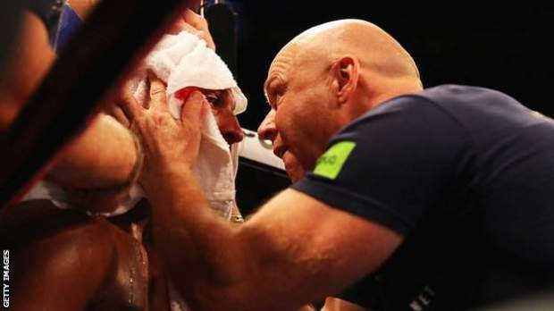 Under proposed rules, trainers and those in the corner will need to wear a protective mask at fight nights