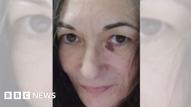 Ghislaine Maxwell: Lawyers release photo that shows bruised face #world #BBC_News