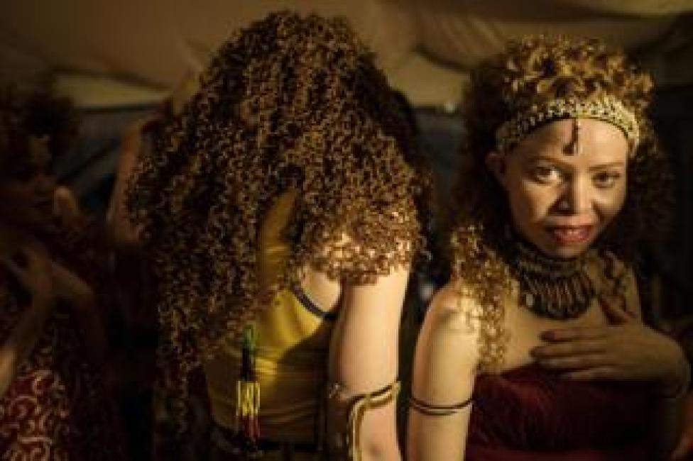 Participants are seen backstage at Mr and Miss Albinism beauty pageant