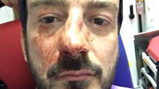 A photo shows a man with a clearly broken nose and blood on his face riding in an ambulance