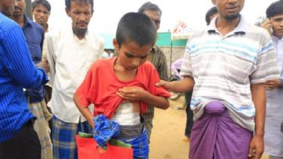 An injured Rohingya boy lifts his T-shirt to reveal a large bandage across his stomach