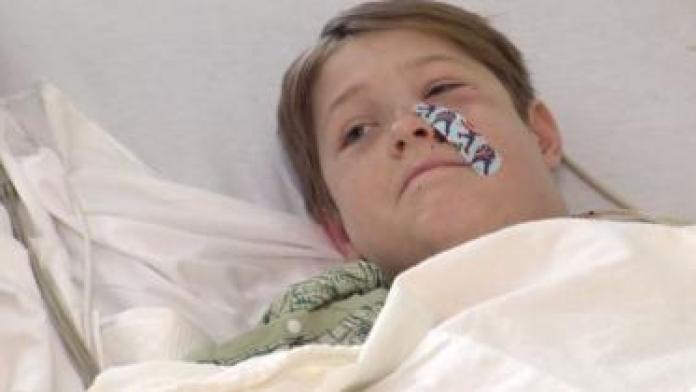 Niño con una cura en la cara cubriéndole una herida