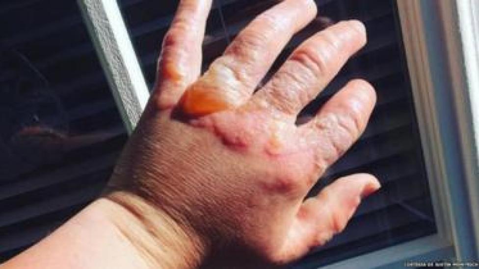 Mano con lesiones por fitofotodermatitis