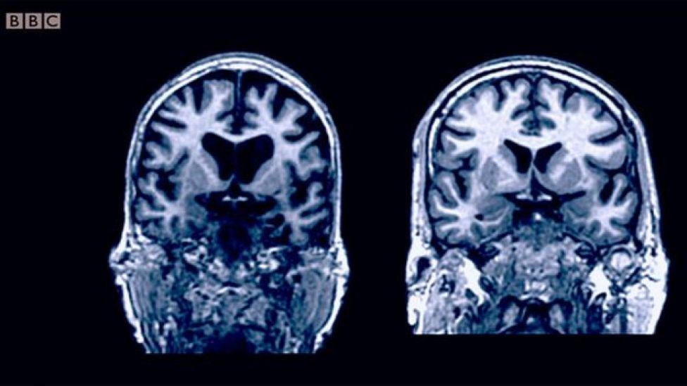 Dos cerebros de personas de la misma edad: a la izquierda, más atrofia.