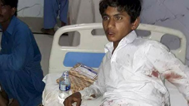 Injured Pakistani blast victims are treated at a local hospital after a bomb explosion in the shrine