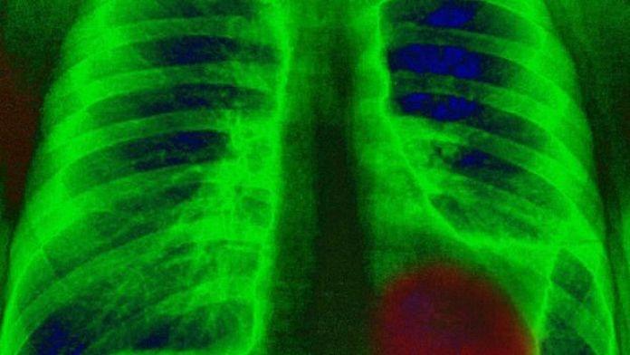 Le cancer du poumon est l'un des plus fréquents dans le monde, aux côtés du cancer du sein et du cancer de l'intestin.