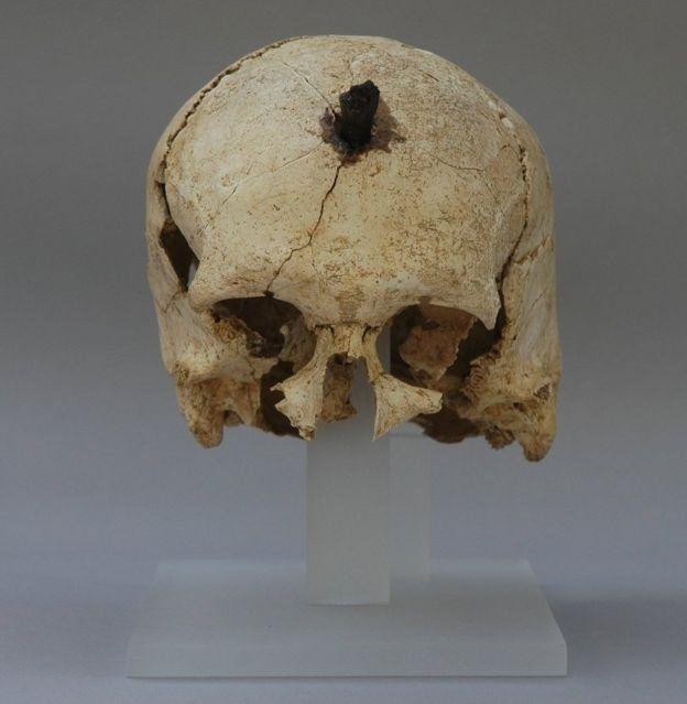 Cráneo con un orificio