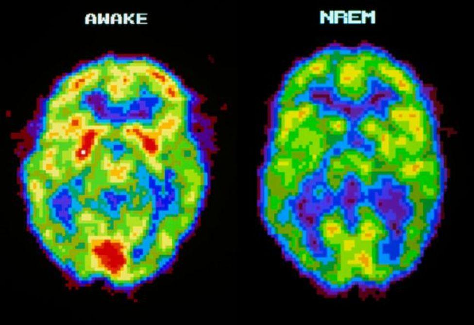 Escáner de cerebro con la persona dormida y despierta.