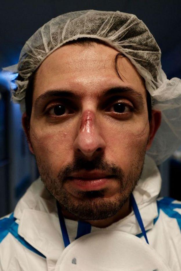 Un enfermero con lesiones en su nariz y pómulos causadas por equipo de protección