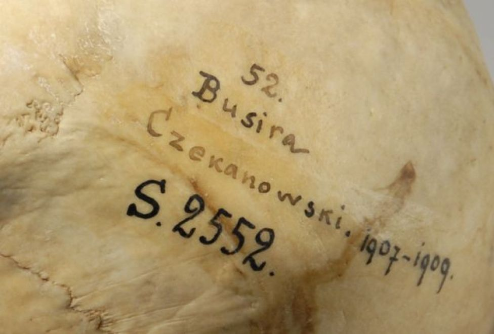 A detail of a skull showing some catalogue writing