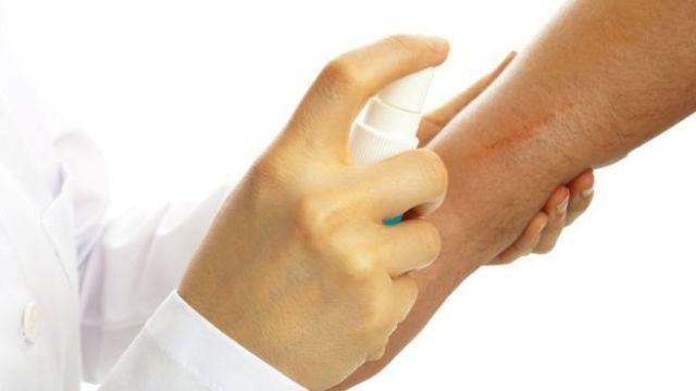 Profesional sanitario aplicando un espray en una cicatriz.