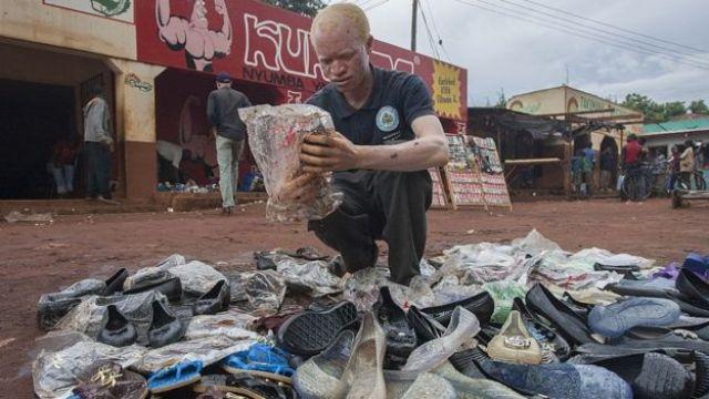 Jammtain Frenando, un albinos malawite vendeur de chaussures en 2015 à Lilongwe. (Illustration)