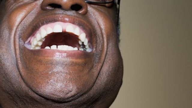 Hombre que ríe