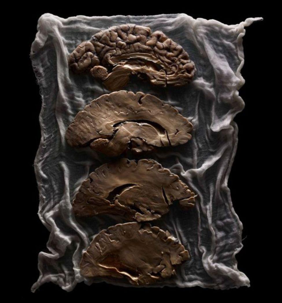 Una gaza con un cerebro dividido en cuatro partes.