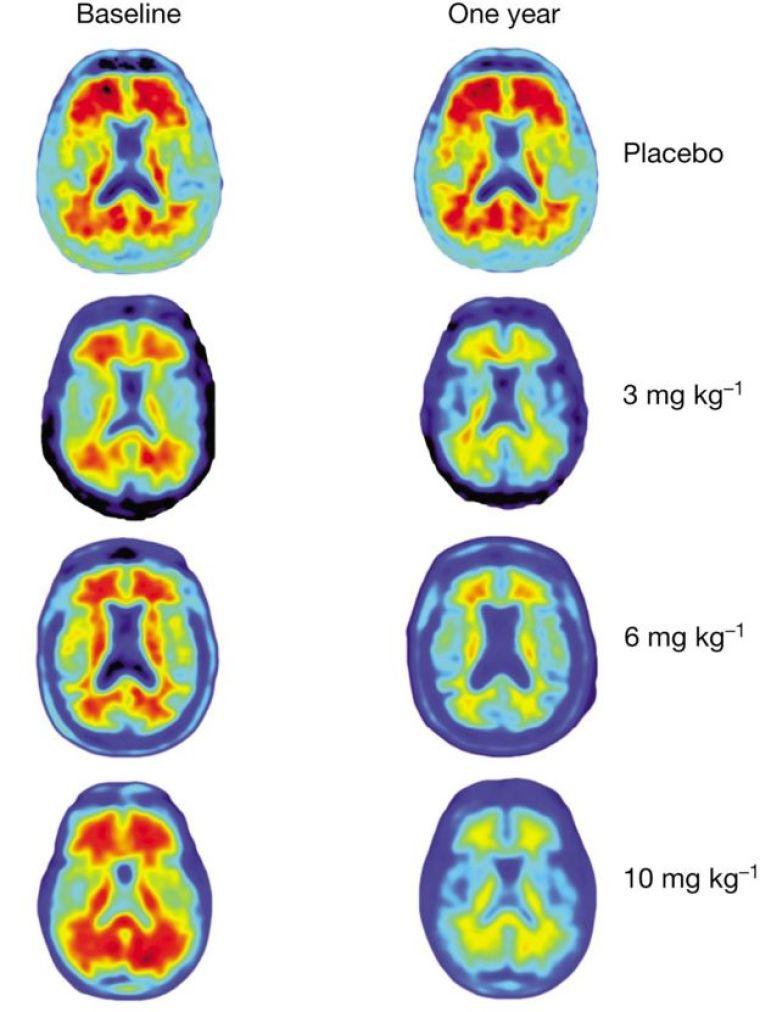 Beyin tomografisi