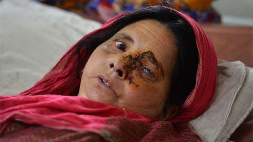 امرأة مصابة في عينها