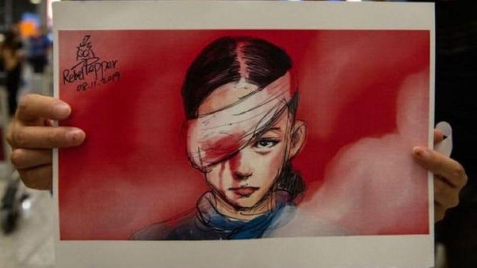 رسم لامرأة صينية مصابة في عينها